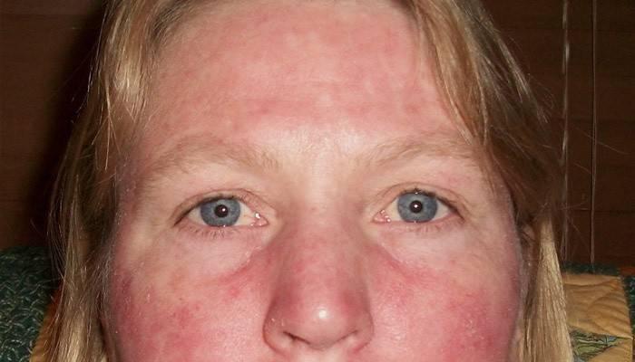 От чего появляются красные пятна на лице: возможные причины и методы лечения