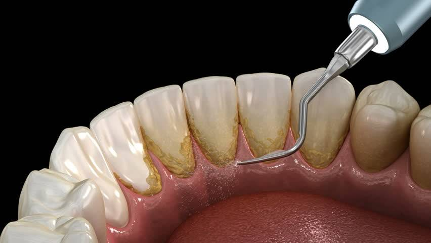 Как убрать зубной камень в домашних условиях без вреда для эмали