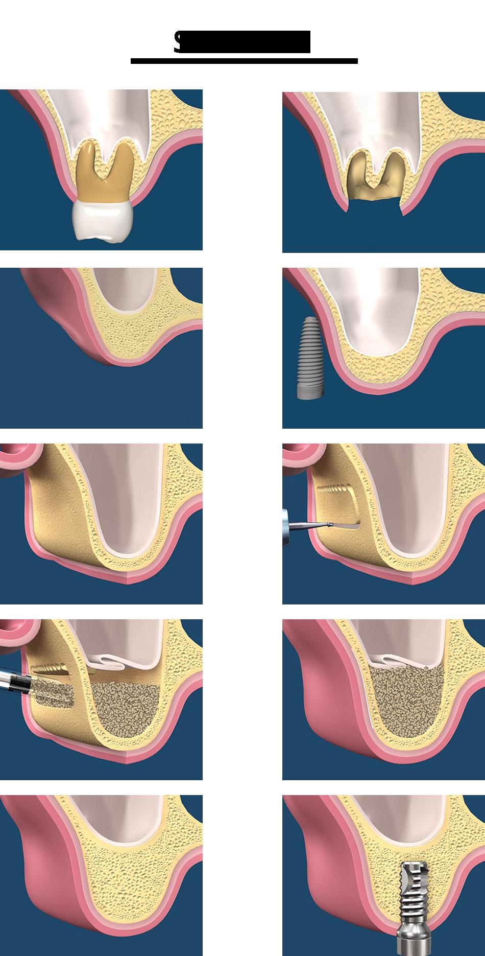 Синус-лифтинг: особенности проведения операции
