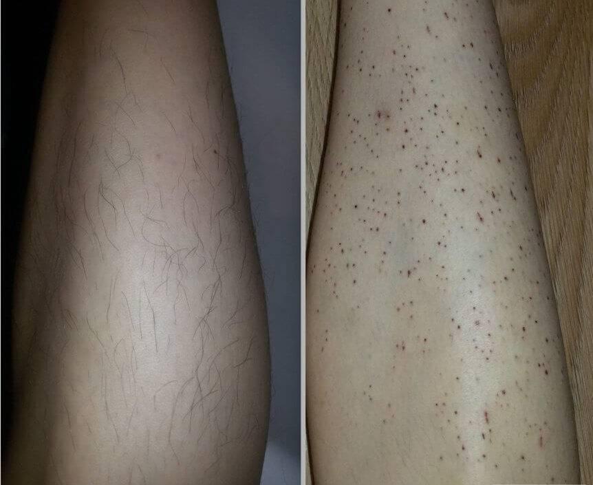 Вросшие волосы и лазерная эпиляция, как способ лечения псевдофолликулита