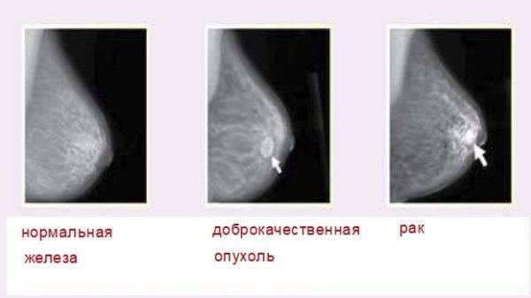 Причины, симптомы и лечение фибромы молочной железы