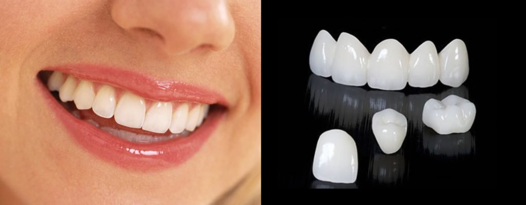 Циркониевые коронки для зубов: отзывы
