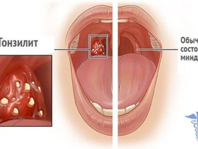 Как лечить воспаленные миндалины в горле