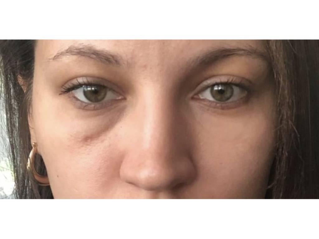 Почему возникают отеки под глазами и как от них избавиться