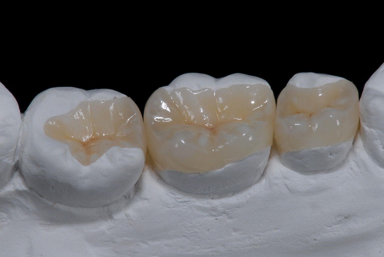Обзор зубных вкладок под коронку с фото и ценами