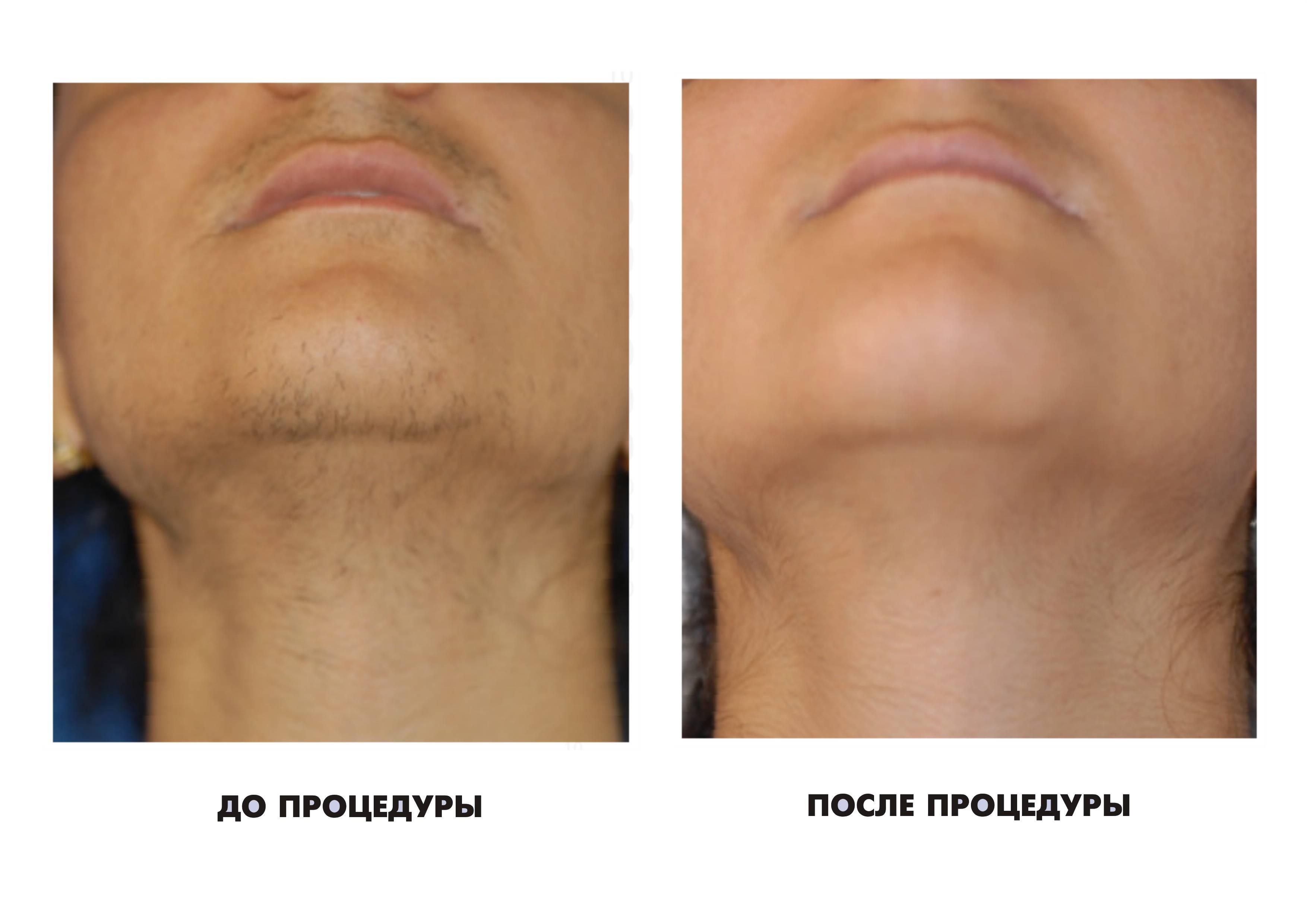 Электроэпиляция на лице.