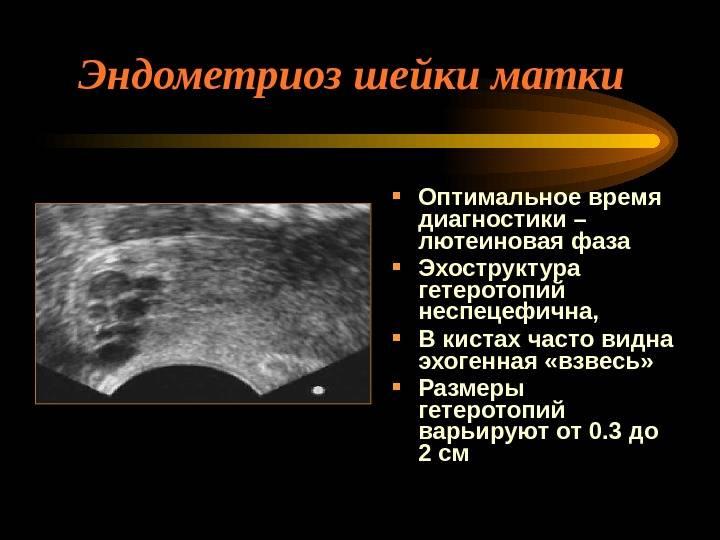 Эндометриоз яичника
