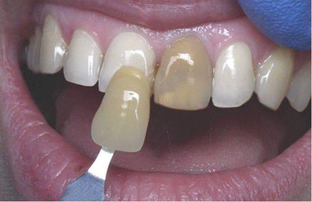 Все за и против отбеливания мертвого зуба