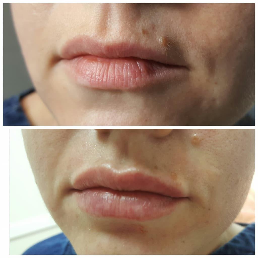 Техники и формы для увеличения губ, советы по выбору