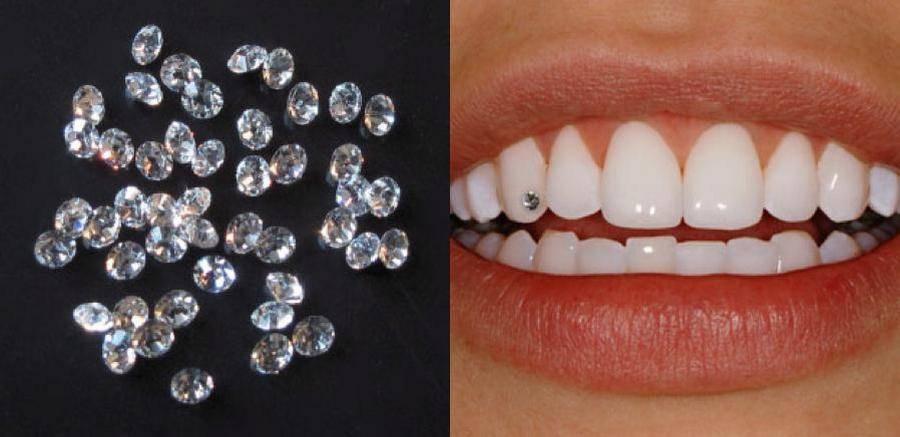 Скайс на зуб (фото)