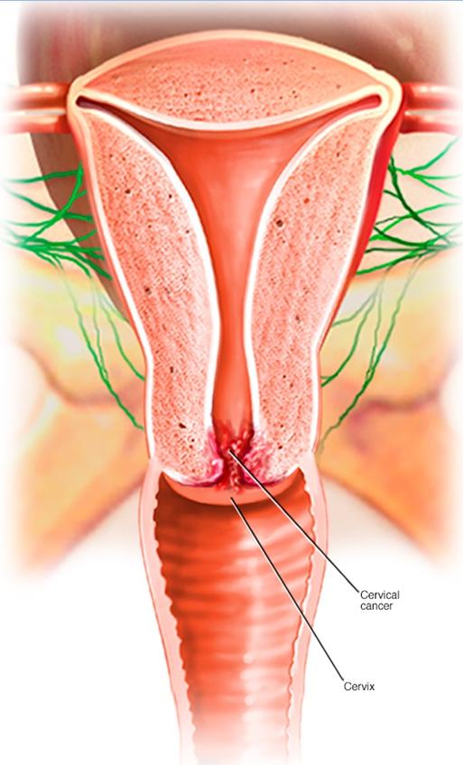 Рак тела матки. симптомы и признаки, причины, стадия, профилактика болезни