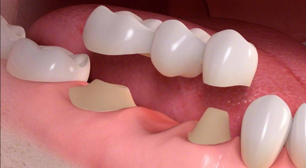 Как делают слепки для протезирования зубов