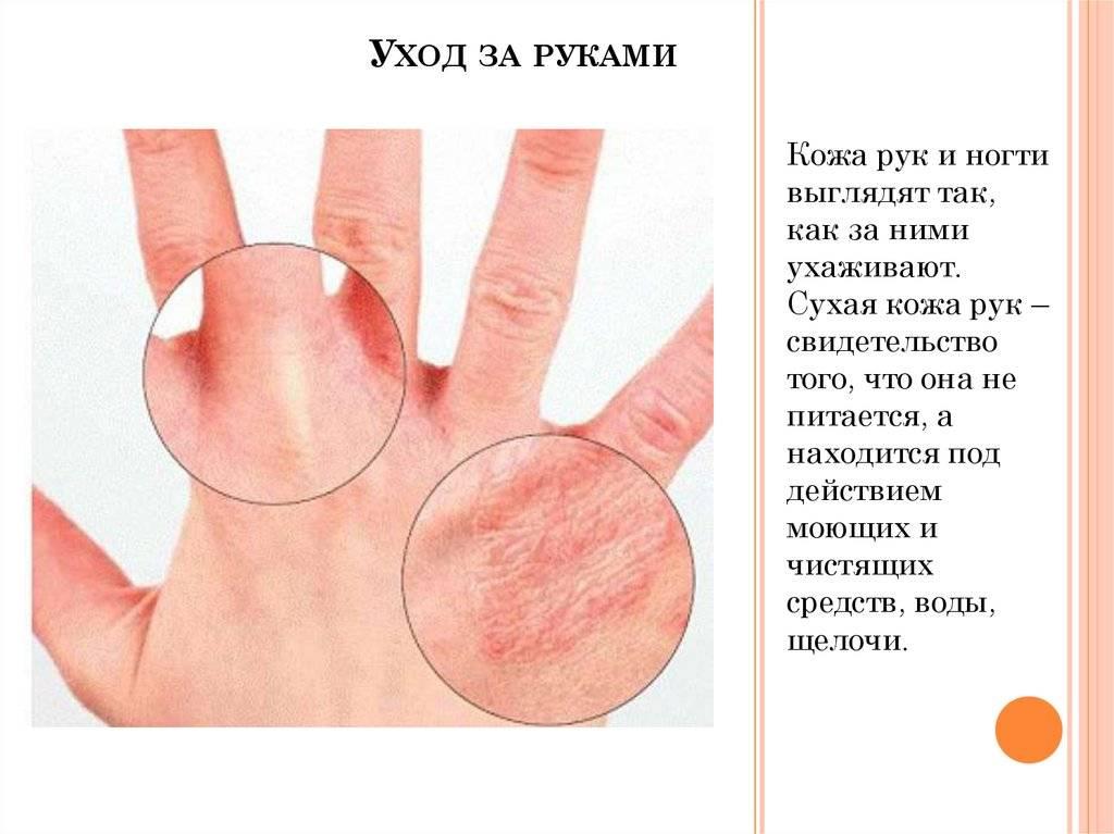 Шелушится кожа на локтях: причины, симптомы