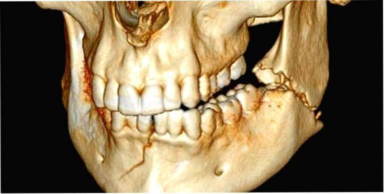 Переломы нижней челюсти, их классификация и лечение