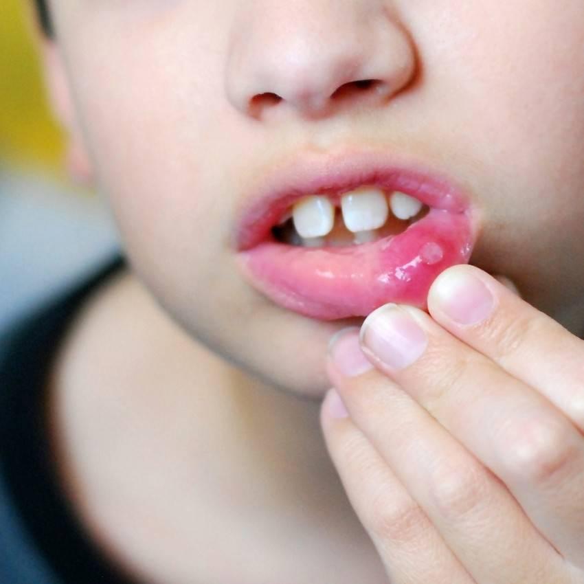 Обнаружили мозоль на губе у новорожденного? не впадайте в панику!