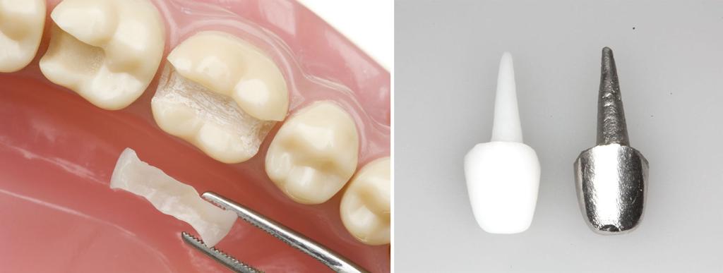 Как и сколько времени после удаления зуба заживает десна: когда делать протезирование?