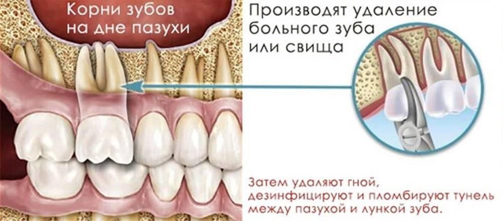 Пломбировочный материал попал в гайморову пазуху: симптомы, последствия и лечение