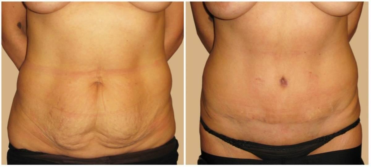 Торсопластика как моделирование фигуры и подтяжка кожи