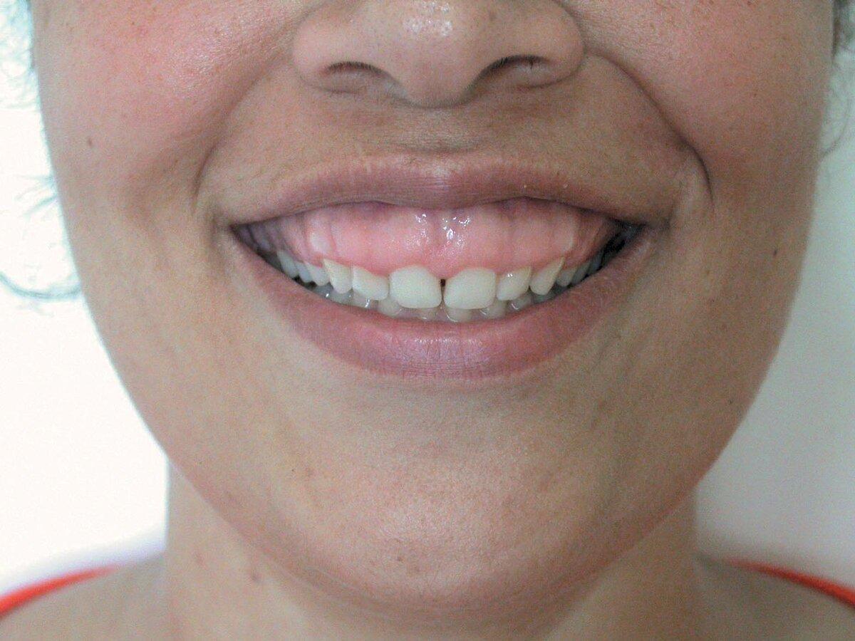 7 методов коррекции десневой улыбки – что делать, если при улыбке видны десны