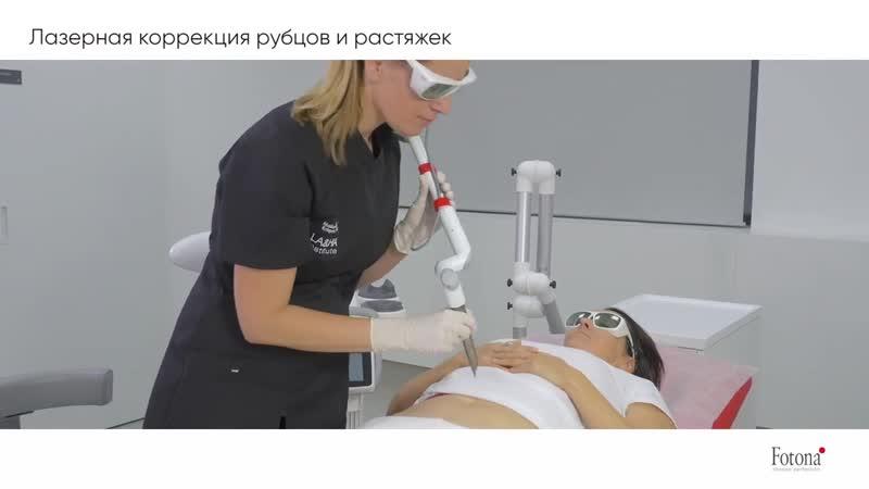 Рубцы во влагалище после родов