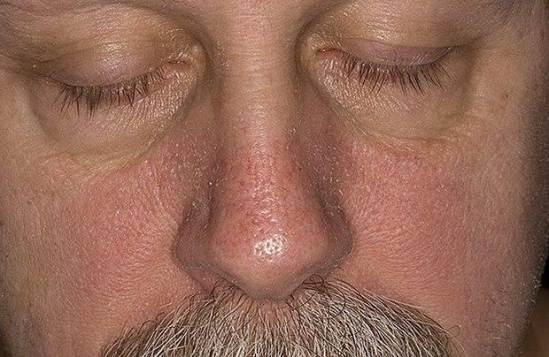 Симптомы и лечение проверенными способами себорейного дерматита на голове