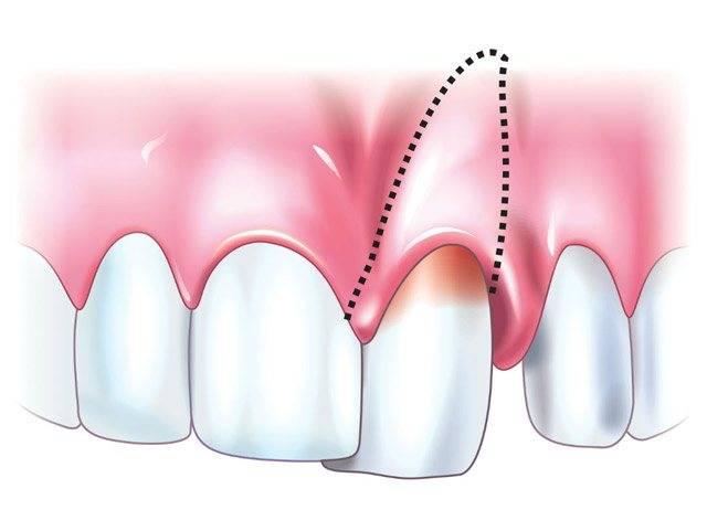 Шатается зуб — что делать?