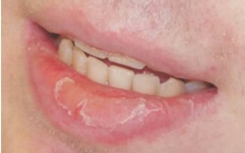 Хейлит на губах — симптомы, протекание болезни и ее лечение