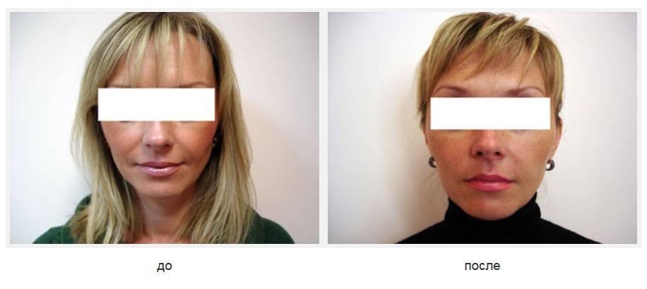 Силуэт лифт – инновационная процедура лифтинга для возрастной коррекции внешности