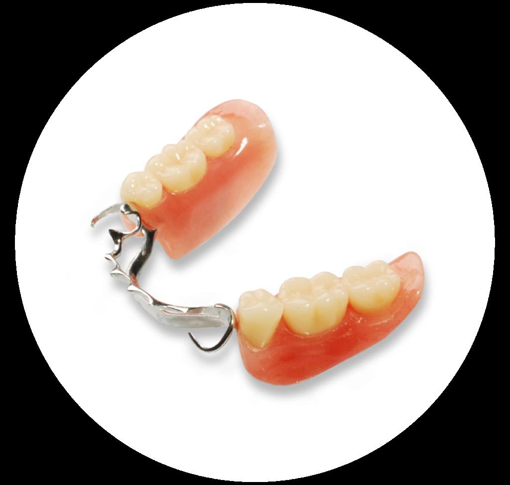 Бюльгерные зубные протезы фото своей