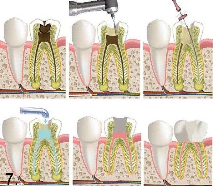 Девитальная и витальная ампутация при пульпите у детей: как происходит лечение зубов?