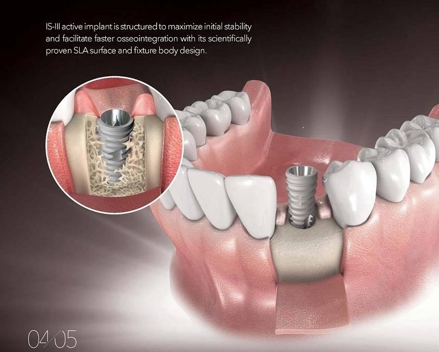 Импланты зубов: виды и цены в москве