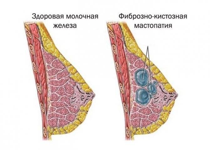 Средства, применяемые в случае фиброзно-кистозной мастопатии молочной железы: что это такое и как лечить?
