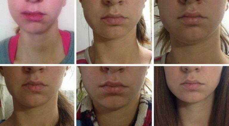 Варианты осложнений после имплантации зубов на нижней и верхней челюсти: отек, боль и воспаление десны