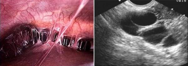 Как проверить есть ли опущение тазовых органов?