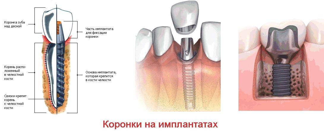 Слепки зубов в москве