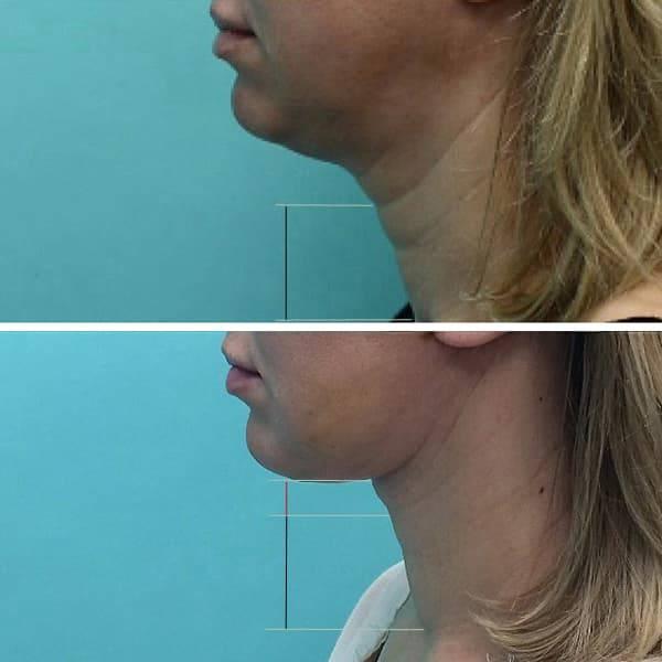 Платизмопластика (пластика шеи): суть операции, виды и ход, результат и реабилитация