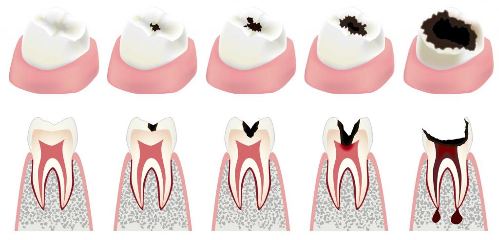 Средний кариес: на этой стадии зуб еще можно спасти