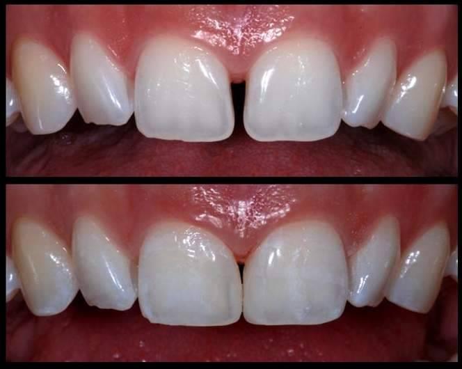 Щель между передними зубами: виды, причины, лечение. как убрать диастему: исправление щели между передними зубами с фото до и после коррекция диастемы