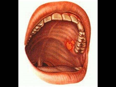 Болит небо во рту. причины и лечение у взрослых, детей. народные средства, мед