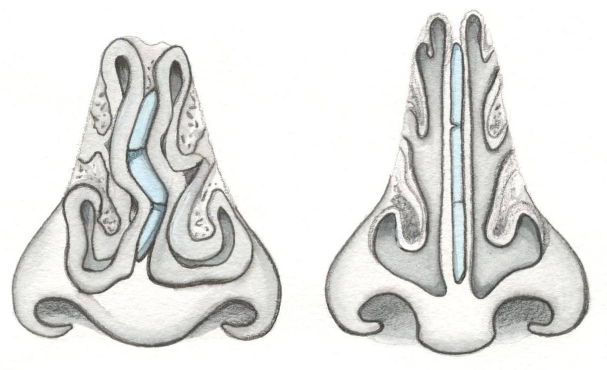 Кривая перегородка носа – последствия и симптомы искривления