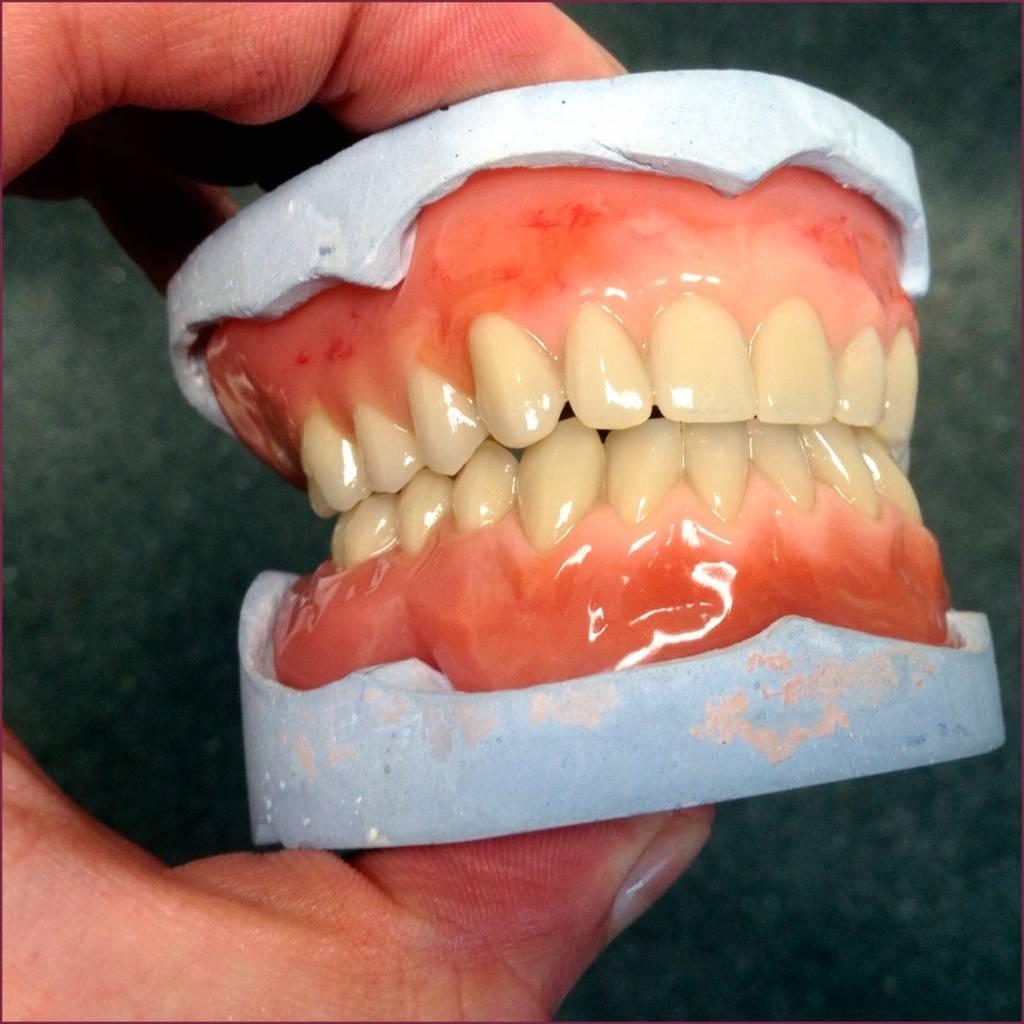 9 лучших зубных протезов