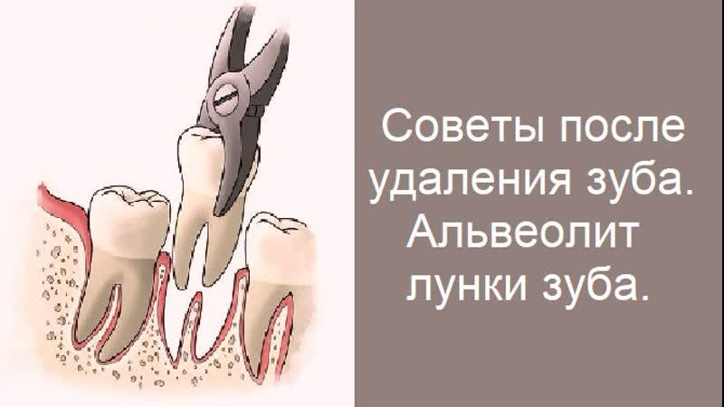 Симптомы и лечение альвеолита после удаления зуба