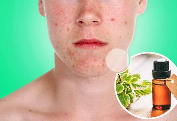 Когда может помочь амарантовое масло при уходе за кожей лица