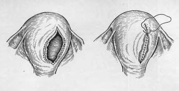 Всё о разрывах и травмах при родах: виды, последствия, как зашивают, меры профилактики