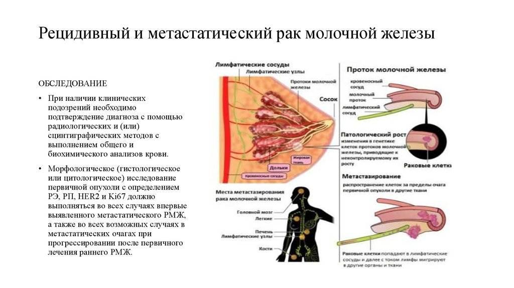 Лечение и прогноз при раке молочной железы с метастазами