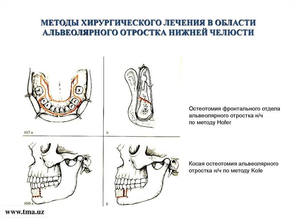 Гайморотомия – операция по вскрытию гайморовой пазухи.