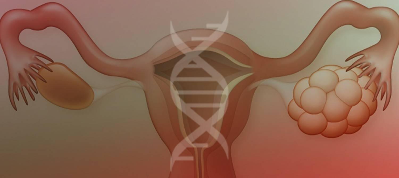 Дисфункция яичников: причины, лечение