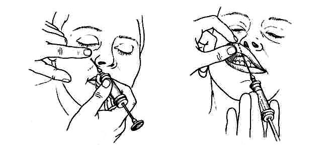 Что такое проводниковая анестезия?