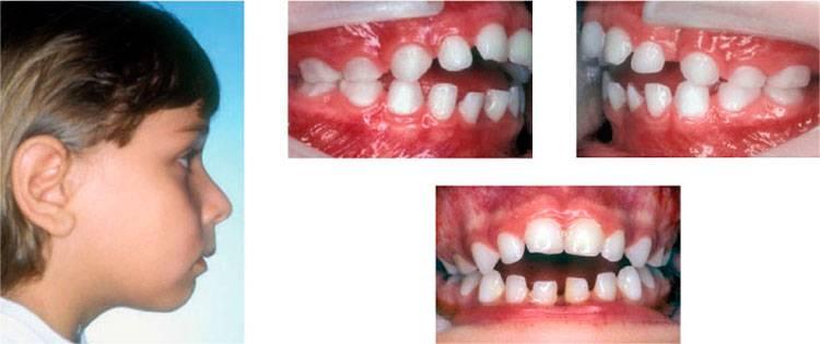 Аномалии размера и формы зуба