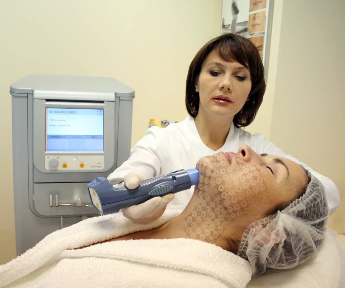 Термаж лица - подтяжку кожи лица без операций